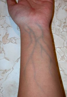 blue veins in arms