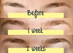 Boost hair growth & get gorgeous thick, full eyebrows. Full Eyebrows, How To Grow Eyebrows, Natural Eyebrows, Castor Oil Eyebrows, Growing Eyebrows, Thicker Eyebrows, Eyebrow Hair Growth, Brow Growth Serum, Eyebrow Makeup
