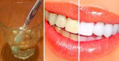 The apple cider vinegar possesses incredible medicinal properties and it is very efficient cure. ACV that is obtained from apples is abundant with pectin, healthy compounds and fundamental minerals. In this article we are going to write about how to use t Teeth Whitening Remedies, Teeth Whitening System, Natural Teeth Whitening, Apple Cider Vinegar Warts, Cooking With Turmeric, Teeth Bleaching, Healthy Teeth, Healthy Life, Natural Home Remedies