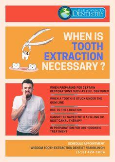 Health Facts, Oral Health, Dental Health, Dental Care, Smile Dental, Dental Hygiene School, Dental Procedures, Dental Extraction, Oral Maxillofacial