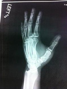 Broken left hand.