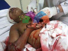 Muere 13 días después de ser baleado en Jinotega