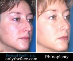 View hundreds of rhinoplasty before and after photos performed by Wisconsin double-board certified facial plastic surgeon Dr. Nose Reshaping, Rhinoplasty Before And After, Nose Surgery, Plastic Surgery, Facial, Photos, Facial Treatment, Pictures