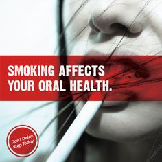 NO SMOKING DAY is March 9! Smoking causes tooth loss, oral cancer and chronic bad breath. If you smoke, start the quitting process TODAY!