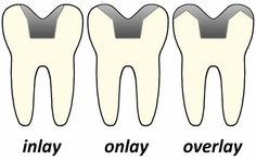 Inlay, Onlay & Overlay   #Dentaltown #PatientEducation Ideas