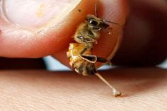 Bee stings hurt, so it seems like an odd proposition to get them on purpose. Believe it or not, the venom that makes that sting may also benefit humans in therapy. Remedies For Bee Stings, Honey Bee Pollen, How To Kill Bees, Termite Pest Control, Honey Benefits, Health Benefits, Bees And Wasps, Arthritis Symptoms, Bee Friendly