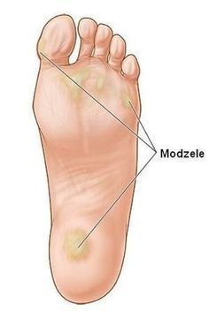 Calluses can impact athletic performance. Knock Knees, Foot Remedies, Beauty Makeover, Cosmetic Treatments, Healthy Nails, Natural Cosmetics, Feet Care, Health And Beauty, Health Fitness