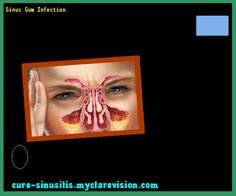 Sinus Gum Infection 094549 - Cure Sinusitis
