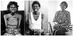 This... This is a powerful image of what AIDS can do, as well as what modern medicine is capable of. - Imgur