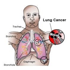 Effective Herbal Remedies For Lung Cancer