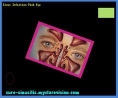 Sinus Infection Pink Eye 110503 - Cure Sinusitis