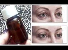 Botox Caseiro para área dos olhos! Passe uma gota disto nas PALPEBRAS - Resultado Inacreditável! - YouTube