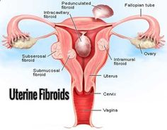 Dr Ajays Homeopathy : Homeopathy for Uterine fibroid can save your Uterus removal