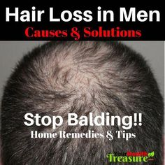 Balding Remedies How To Stop Hair Loss In Men: Baldness - Hair Loss Home Remedies Hair Loss Causes, Anti Hair Loss, Stop Hair Loss, Will Turner, Hair Detox, Bodybuilding, Excessive Hair Loss, Natural Hair Loss Treatment, Going Bald