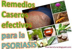 remedios caseros para psoriasis del cuero cabelludo