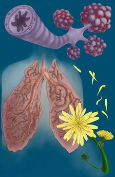 Anxiety Causes, Asthma, Appreciation, Health Fitness, Illustrations, Art, Art Background, Illustration, Kunst
