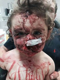 mia derouen 4 years old killed by pit bull it took 12