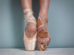 """Pointe"" by Tyler Shields 2015-03 • the pain of ballet or dancers, what dedicated heroes of Aesthetics! ; )"