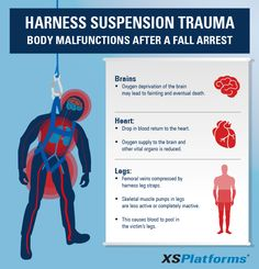 Harness Suspension Trauma (HST) is a risk for everyone using a fall arrest system, which is often overlooked by users as well as the owners of the system.