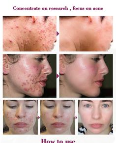Name: PROPOLIS repair acne Brightening Serum Features: Various natural plant essence, moisturize and brighten skin, balance oil secretion, eliminate pockmar Hair Remedies For Growth, Shrink Pores, Skin Serum, Best Moisturizer, Facial Oil, Acne Scars, Acne Skin, Shiny Hair, Oils For Skin