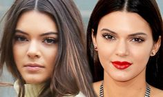 Our expert UK cosmetic surgeon Mr Miles Berry FRCS comments on Kendal Jenner possible nose job in the Daily Mail - Celebrity Plastic Surgery Rhinoplasty news