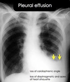 Which of the following diagnoses should be considered when an unexplained isolated pleural effusion is found on chest radiograph?