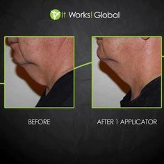 You can wrap from neck down! So get rid of the chin waddle today! One body applicator can be cut to fit ANY area of your body. Get 6 chin wraps out of 1 full sized applicator! Cellulite, It Works Wraps, Ultimate Body Applicator, It Works Global, Defining Gel, Lose Inches, Crazy Wrap Thing, Double Chin, Sagging Skin