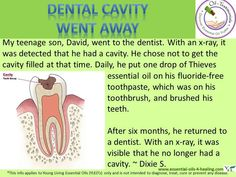 Young Living Thieves Essential Oil: Dental Cavity Testimonial