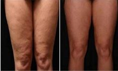 How to Get Rid of Cellulite on Legs? How to get rid of cellulite on legs? Home remedies for cellulite on legs. Treat cellulite on legs fast and naturally. Ways to cure cellulite on thighs. Cellulite Scrub, Cellulite Remedies, Reduce Cellulite, Cellulite Cream, Thigh Cellulite, Cellulite Exercises, How To Get Rid, How To Remove, Funguje To