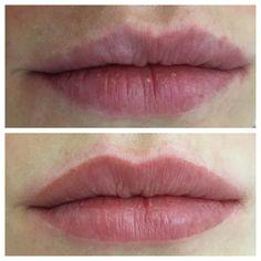Labios bonitos é Labios naturais!! Ela tinhas algumas imperfeições no contorno que em forma de escultura foi restaurado sem agredir a natureza dos lábios. #bonitoésernatural #sobrancelhas #lips #microblading #permanentmakeup #micropigmentation #micropigmentação