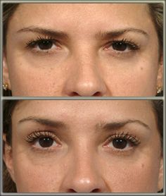 brow lift helps to smooth wrinkles and return the upper face to a more youthful appearance. The upper face and eye areas enjoy the most benefits from this cosmetic procedure. Botox Brow Lift, Eyebrow Lift, Marlo Thomas, Kim Basinger, Body Lift Surgery, Forehead Lift, Cosmetic Procedures, Nursing Procedures, Cosmetic Clinic