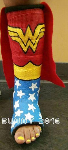 Love this Wonder Woman cast design ( broken bones ) cast art Decorated Crutches, Walking Cast, Arm Cast, Broken Foot, Cast Art, Steampunk Design, Get Well Cards, Wonder Woman, Crafty