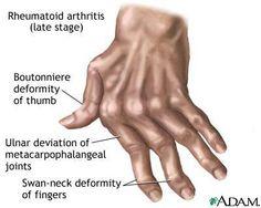 Rheumatoid Arthritis: the most common thumb deformity is Boutonniere.