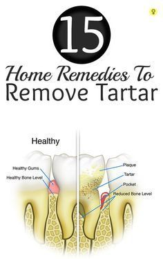 15 Amazing Home Remedies To Remove Tartar : Brushing teeth every day, proper flossing, oral hygiene, regular dental checkups are important to maintain good oral health. Neglecting any of these can really create a havoc on teeth and gums. (Great ways to prevent, slow down, or reverse tartar devlopment) #oralgumremedies