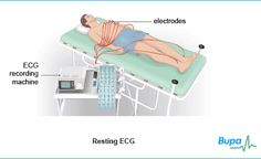 An ECG records the rhythm and the electrical activity of your heart to find out if your heart is healthy. For more information see: http://www.bupa.co.uk/individuals/health-information/directory/e/electrocardiogram?cmpid=soc-pinterest_bupahealth