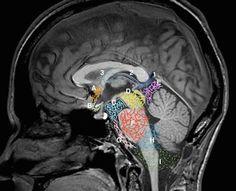 Sagittal midline of the brain: normal anatomy | Radiology Case | Sagittal T1 Normal sagittal midline demonstrating the central venous vasculature and cisterns. 1. Great cerebral vein of Galen. 2. Internal cerebral vein. 3. Thalamostriate vein. A. Cistern of the laminae terminalis. B. Chiasmatic cistern. C. Interpeduncular cistern. D. Ambient cistern. E. Quadrigeminal cistern. F. Cerebellopontine cistern. G. Prepontine cistern. H. Lateral cerebellomedullary cistern. I. Cisterna magna