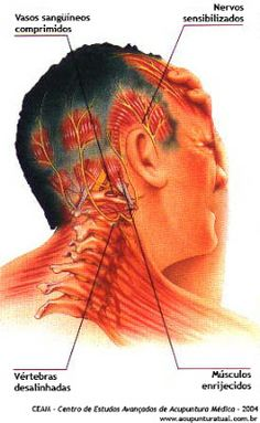 myofascial trigger points   ... . --- Myofascial Pain and Trigger-points: What is there to be known