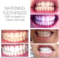 NuSkin Whitening Fluoride Toothpaste gets your teeth back to white without the sensitivity of bleach Ap 24 Whitening Toothpaste, Whitening Fluoride Toothpaste, Teeth Whitening Remedies, Natural Teeth Whitening, Wine Stains, Healthy Teeth, Healthy Life, Cosmetic Dentistry, Teeth Cleaning