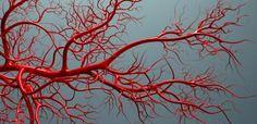 The Use of Artemisinin Compounds as Angiogenesis Inhibitors to Treat Cancer by Artemisinin H.