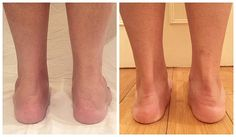 Before, left, and after, right: The procedure made quite a difference to Zebun's ankles, and she was extremely pleased with the result