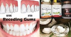 Healthy nutrition may be key to helping fight gum disease, which is not only important to oral health, but also to general health and well being. Eighty-five...