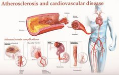 Atherosclerosis And Cardiovascular Disease