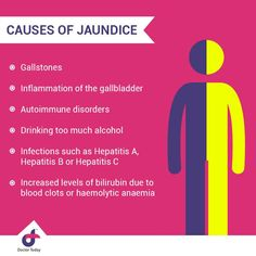 Causes of Jaundice  > Gallstones > Inflammation of the gallbladder > Autoimmune disorders > Drinking too much alcohol > Infections such as Hepatitis A, B, and C > Increased levels of bilirubin due to blood clots or hemolytic anemia