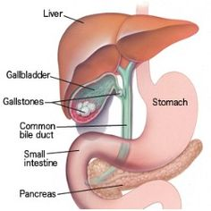 Home Remedy For Gallstones