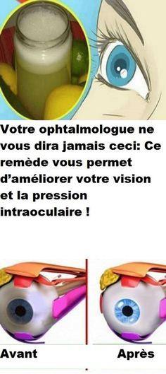 Votre ophtalmologue ne vous dira jamais ceci: Ce remède vous permet d'améliorer votre vision et la pression intraoculaire !