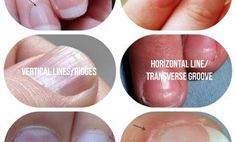 Organic Olivia ::   What Your Fingernails are Trying to Tell You About Your Health