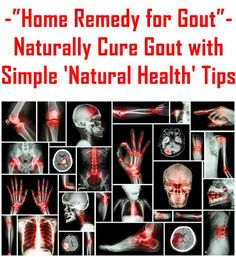 How can you treat gout at home with all-natural products?