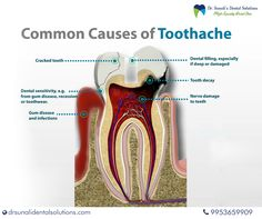 Curing Tooth Pain Naturally