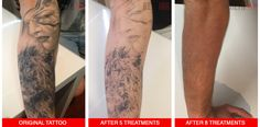 View our portfolio of genuine before and after photos of complete laser tattoo removal and progress photos of current clients
