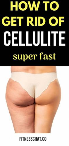 How to get rid of cellulite fast and how to get rid of stretch marks at home using proven remedies. Find out how to use Bio-Oil for cellulite and why palmers cocoa butter and Bio-Oil are the best cellulite removal creams. Other cellulite remedies that include DIY coffe scrub, cellulite exercises, cutting down dairy, sugar and bread. Get rid of cellulite on thighs, legs, stomach and booty fast using cellulite workouts #CelluliteWrap #BestAntiCelluliteCream Cellulite Oil, Cellulite Wrap, Causes Of Cellulite, Cellulite Exercises, Cellulite Remedies, Reduce Cellulite, Cellulite Workout, Tummy Workout, Do Exercise